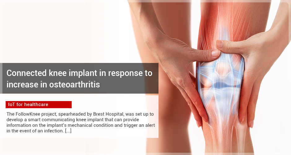 Connected knee implant in response to increase in osteoarthritis